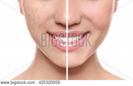 Photo Before And After Retouch, Collage. Young Woman On White Background, Closeup
