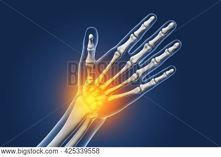 Painful Hand, Pain In Palm Or Wrist