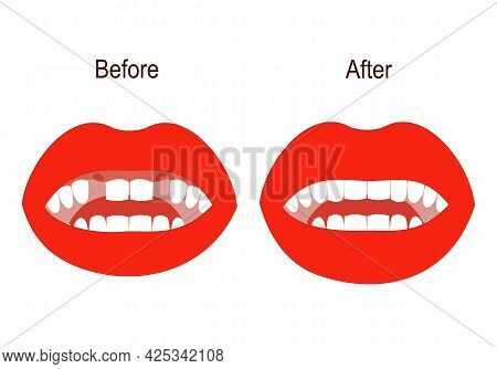 Dental Treatment And Prosthetics. Teeth Before And After The Doctor's Treatment. The Mouth Is Open.