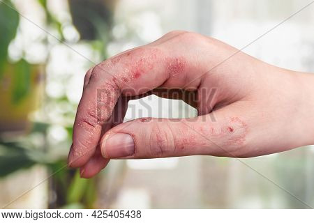 Psoriasis Of The Skin On A Woman's Hand. Peeling, Rashes And Cracks In The Patient's Skin. Chronic D