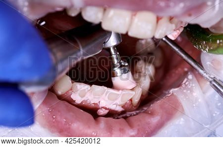 Orthodontist Using Stainless Steel Dental Polisher And Mirror During Dental Procedure. Patient With