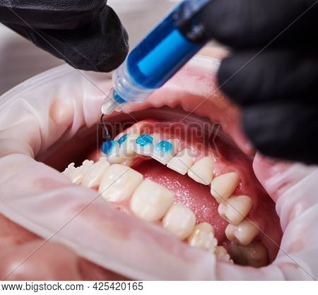 Ceramic Braces Installation Process. Close-up Top View On Dentists Hands Putting Some Blue Glue On P
