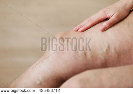 Painful Varicose And Spider Veins On Active Womans Legs, Self-helping Herself In Overcoming The Pain