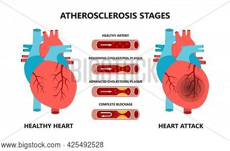 Heart Attack And Atherosclerosis Stages. Healthy And Unhealthy Arteries. Cholesterol In The Blood Ve