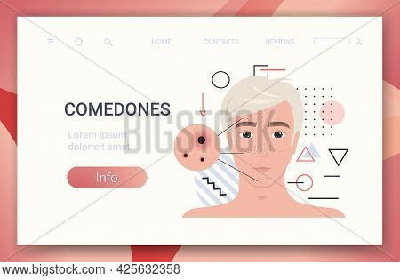 Acne On Man Face Pore Comedones Cosmetology Skincare Problems Treatment Skin Disease Concept Portrai