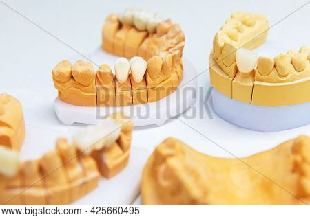 Manufacturing Of Dental Implants. Artificial Teeth On The Jaw Layout. Prosthetic Teeth.