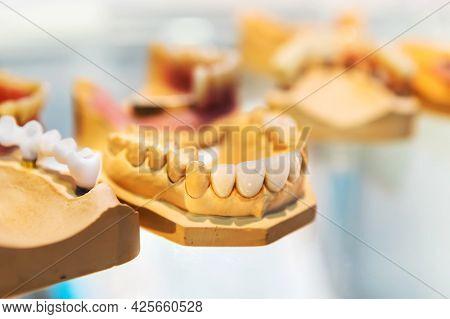 Dental Crowns. Prosthetics And Dental Treatment. Dental Clinic.