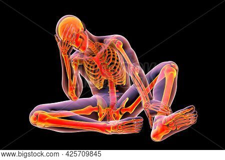 Male Body With Skeleton In Unhappy Frustrated Pose, Conceptual 3d Illustration. Concept Of Painful F