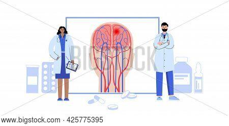 Brain Stroke, Hemorrhagic And Ischemic Problem. Pain In Human Head. Arteriosclerosis, Infarct, Ische