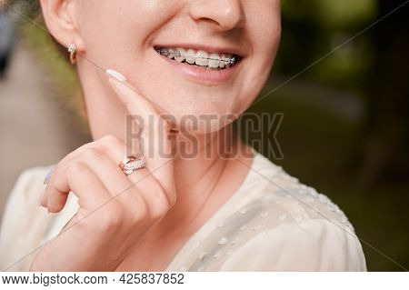 Close Up Of Woman With Orthodontic Brackets On Teeth Touching Chin And Smiling. Patient Demonstratin