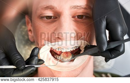 Close Up Of Orthodontist Examining Man Teeth With Dental Mirror And Dental Explorer. Male Patient Wi