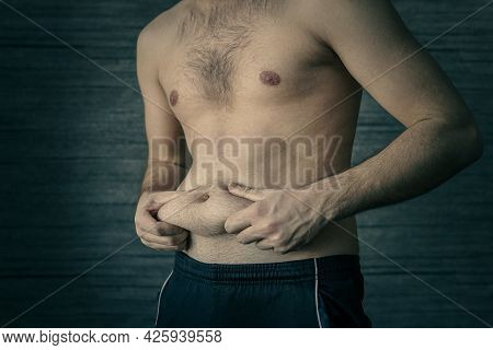 Man Squeeze Belly Fat On A Dark Background. Early Stage Of Obesity. An Adult Male Squeezes A Fold Of