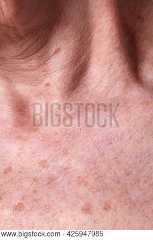 Aging female skin with melasma spots