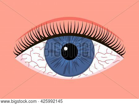Inflamed Sick Eye With Allergy Symptom Red Veins. Eye Fatigue Or Allergic Conjunctivitis Infection.