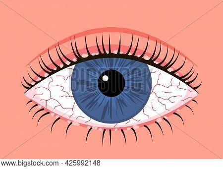 Inflamed Sick Human Eye With Blepharitis, Allergy Symptom Red Veins. Eye Disease, Fatigue Or Allergi