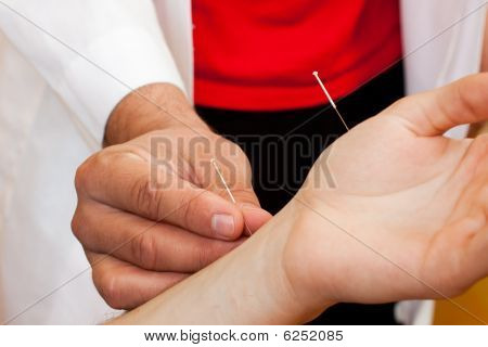 Chinese doctor performing acupuncture on a patients hand