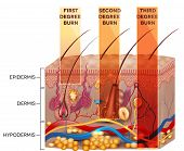 Skin burn classification. First second and third degree skin burns. Detailed skin anatomy. poster
