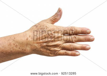 old female hand full of freckles / sign of aging