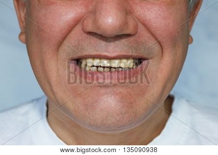 Man With Upper Ental Bridge