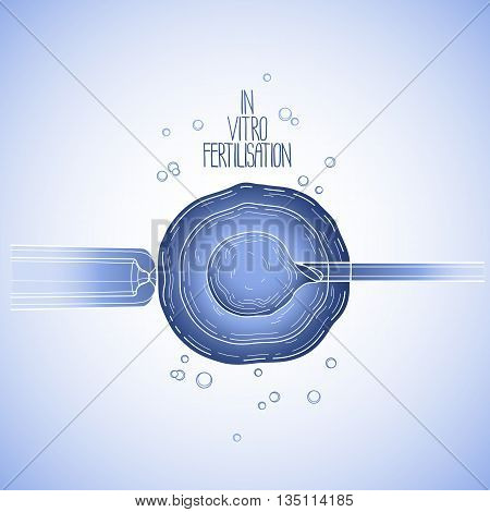 In vitor fertilisation. Artificial insemination. Graphic medical illustration. Vector design in blue colors