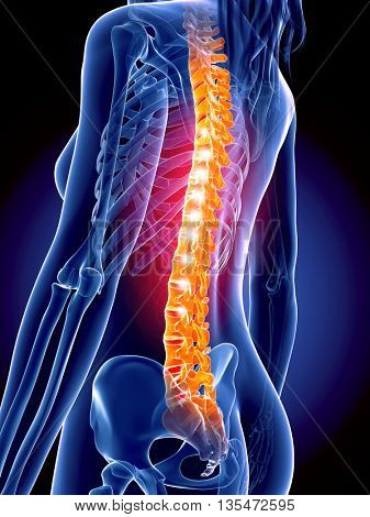 3d rendered, medically accurate 3d illustration of the painful spine
