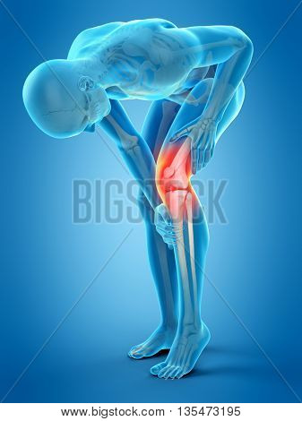 3d rendered, medically accurate 3d illustration of knee pain
