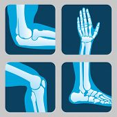 Human joints, knee joint, elbow joint, ankle joint, wrist. Medical orthopedic vector of set. Anatomy orthopedic human joint and illustration icon leg and hand joint poster