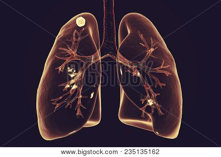 Secondary Tuberculosis In Lungs, Apical Nodule, 3d Illustration