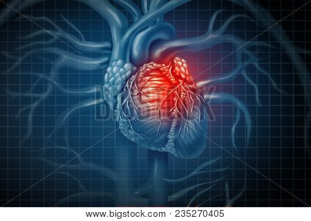 Heart Attack Pain As A Human Cardiovascular Organ With A Painful Cardiac Inflamation With 3d Illustr