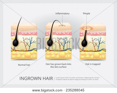 Ingrown Human Hair Structure With Detail Vector Illustration