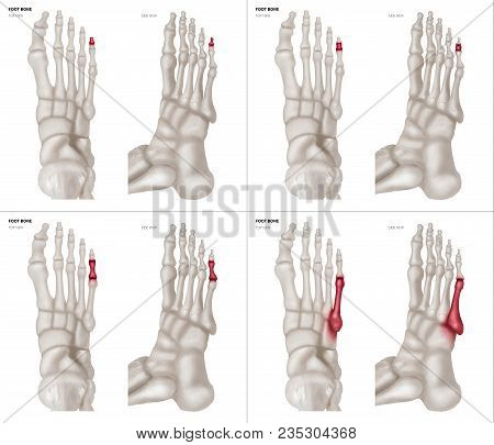 X-ray Collection Of Ring Toe Foot Bone With Red Highlights On Different Pain And Joint Area-top And