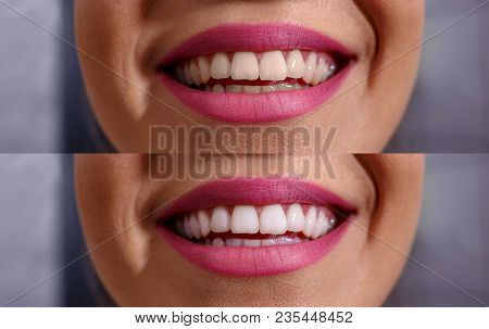 Close Up Of Smile With White Healthy Teeth Before And After
