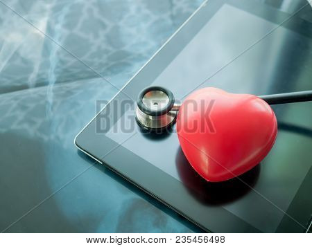 Red Heart And Stethoscope On Laptop. Heart Disease And Health Care Concept.