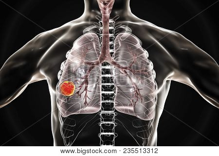 Lung Cancer, Medical Concept, 3d Illustration Showing Cancerous Tumor Inside Human Lung