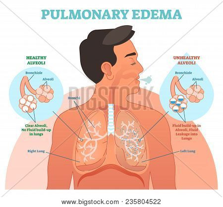 Pulmonary Edema, Lung Problem Vector Illustration Diagram With Bronchi And Fluid Leakage In Alveoli.