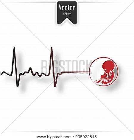 Abortion Is Personal Decision. Embryo With Scissors. Flat Vector Illustration. Abortion Sign, Aborti
