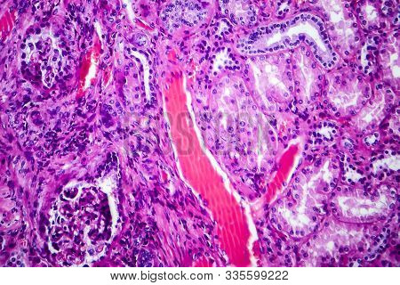 Histopathology Of Hypertensive Renal Disease, Light Micrograph, Photo Under Microscope