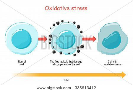 Oxidative Stress. Vector Diagram Cell With Free Radicals. Illustration For Your Design, Educational,