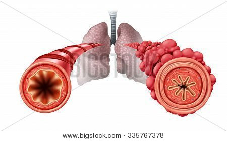 Popcorn Lung Condition Concept Or Obliterative Bronchiolitis Disease As Obstructed Bronchial Tubes C