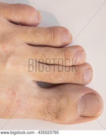 Male Hairy Toes. Nail Fungus And Crooked Long Fingers. Rash On The Leg.