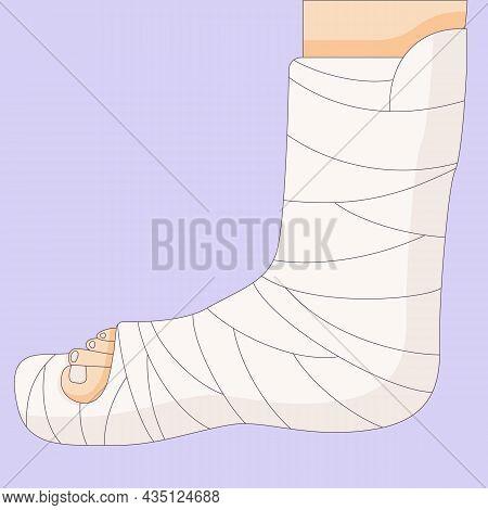 Broken Leg In In A Cast Bandage, Orthopedic Gypsum, Injury Bone, Vector Illustration Drawn In A Flat