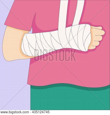 Broken Arm In In A Cast Bandage, Orthopedic Gypsum, Injury Bone, Vector Illustration Drawn In A Flat