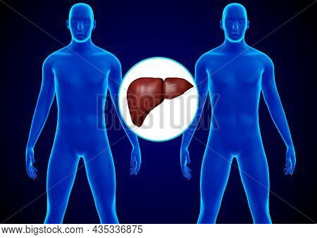 Human Liver Transplantation. Replacement Of A Diseased Liver With A Healthy Donor Liver. 3d Renderin