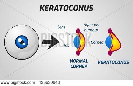 Normal Cornea And Keratoconus Concept. Vector Illustration.