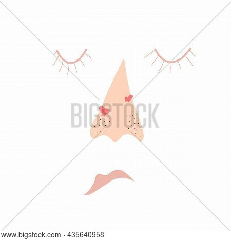 Nose Teen Problems Icon. Flat Illustration Of Nose Teen Problems Vector Icon For Web Design