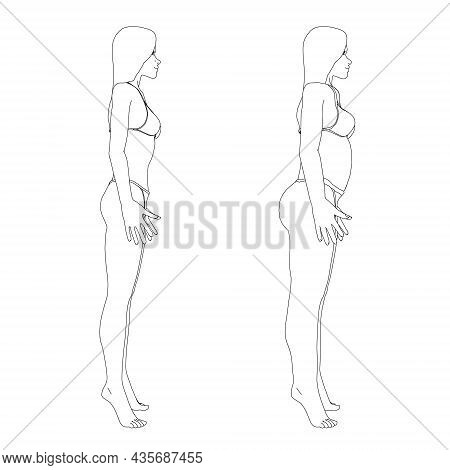 The Contour Of A Girl In Underwear, A Slim And Fat Girl. The Process Of Obesity Of The Girl Body. Si