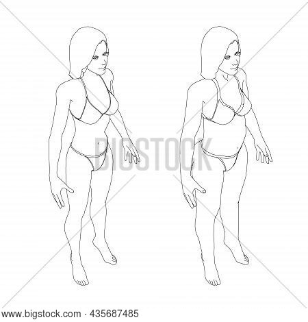 The Contour Of A Girl In Underwear, A Slim And Fat Girl. The Process Of Obesity Of The Girl Body. Is