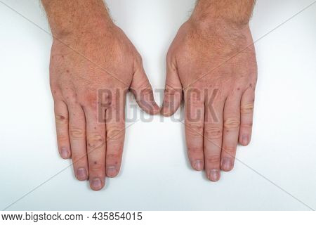 Painful Rash, Red Blisters On A Mans Arm. Human Hands With Dermatitis, Allergy Rash. Enterovirus. Co