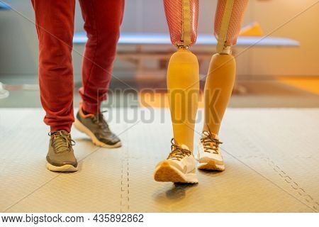 Close-up of a woman walking with prosthetic limbs being assisted by physiotherapist