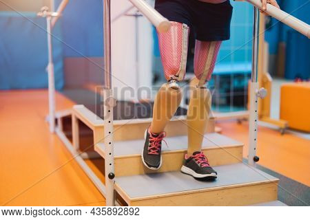 Close-up of an young woman with legs prosthesis at physiotherapy center